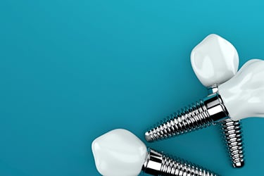 Dental implants on blue table offering the ultimate solution for optimal function and confident smiling.